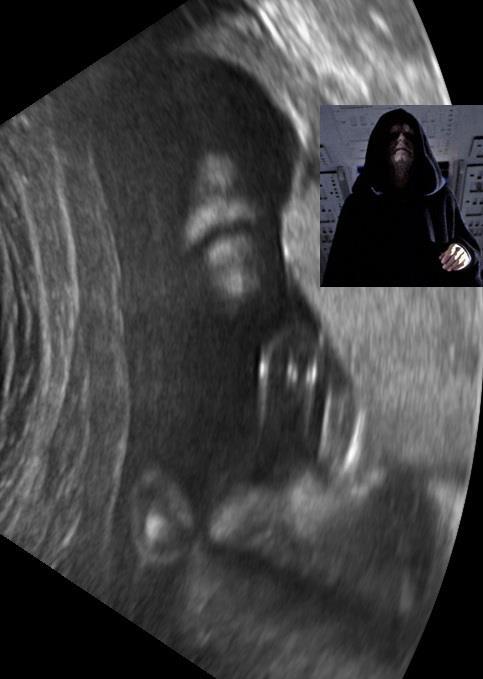 Emperor_Palpatine_ultrasound