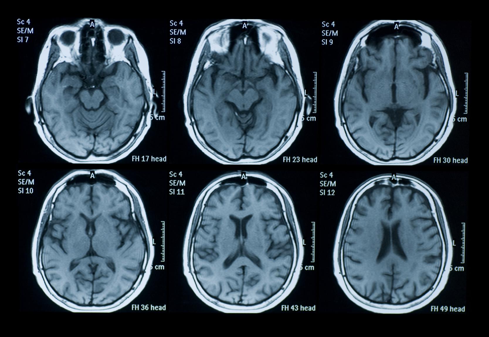 istock-brain-scan