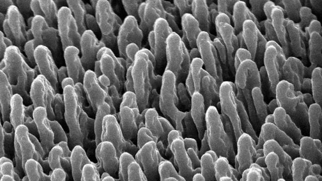 bacteria killing